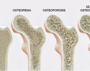Остеопороз и кето⠀